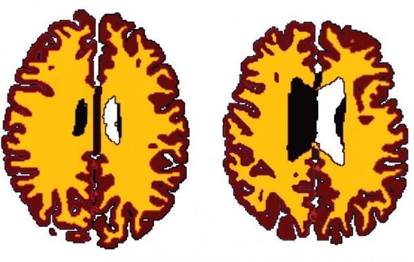مقارنة بين المادة الرمادية (بالبني)، والمادة البيضاء (بالأصفر) في أشخاص متوافقين حسب الجنس. A (56 سنة، مؤشر كتلة الجسم 19.5)، B (50 سنة، مؤشر كتلة الجسم 43.4). حقوق الصورة: Lisa Ronan.