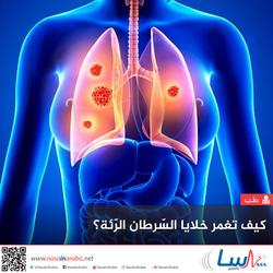 كيف تغمر خلايا السرطان الرئة؟