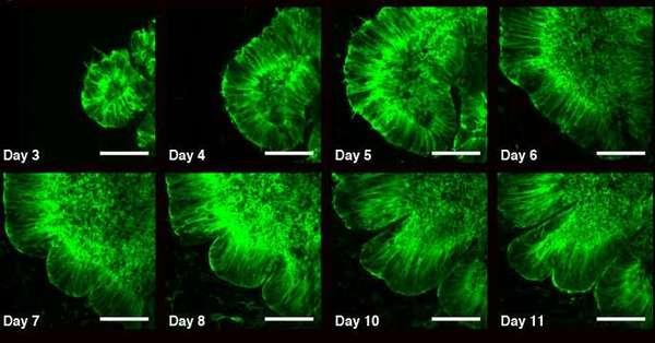 صورة بالتألق تُظهر تطور عُضيّ خلال 3-11 يوم كما نرى بوضوح نشوء التجعدات. الصورة محفوظة لـ(Weizmann Institute of Science).
