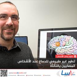 تطور غير طبيعي للدماغ عند الأشخاص المصابين بالتأتأة
