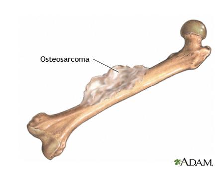 الساركوما العظمية.