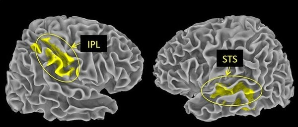 ما يسمى الفصيص الجداري السفلي inferior parietal lobule أو اختصاراً (IPL) والموجود في الفص الجداري هو الذي يُقيِّم المواقف السلبية، أما التلم الصدغي العلوي superior temporal sulucus واختصاراً (STS) في الفص الصدغي فهو ما يترجم اﻷحداث اﻹيجابية.  كلا المنطقتين جزء من شبكة عصبية تساعد الدماغ في تقييم بيئته. حقوق النشر: MPI f.Human Cognitive and Brain Sciences.
