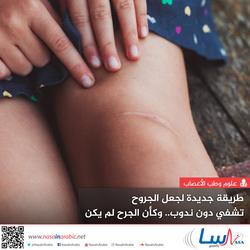 طريقة جديدة لجعل الجروح تشفي دون ندوب.. وكأن الجرح لم يكن