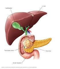 سرطان البنكرياس Pancreatic cancer