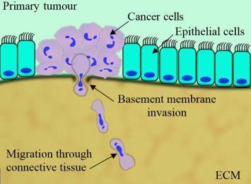 انتشار السرطان