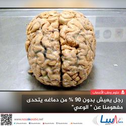 رجل يعيش بدون 90% من دماغه يتحدى مفهومنا عن