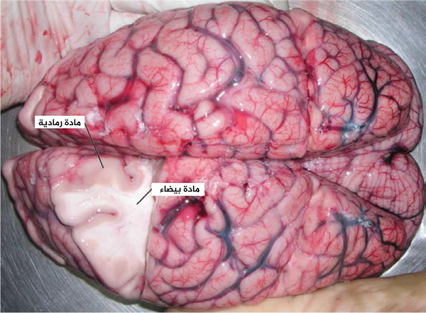 """المادة السنجابية والمادة البيضاء: دماغ أزيل من جسد خلال عملية تشريح جثّة، وهناك قسم جزئيّ قد أزيل، والذي يظهر مادة بيضاء محاطة بمادة سنجابية. المادة السنجابية تشكّل القشرة الخارجية للدماغ. حقوق الصورة: تعديل لعمل من قبل """"Suseno""""/Wikimedia Commons."""