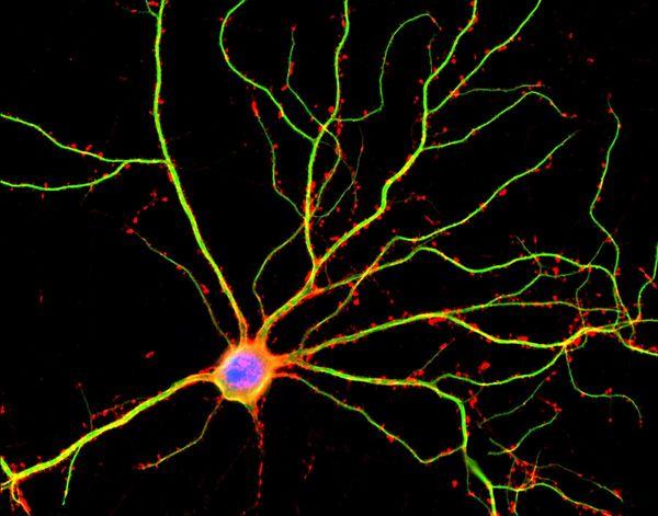 اكتشف علماء من UCLA أنّ التغصنات dendrites (وهي الموسومة باللون الأخضر في الصورة أعلاه) ليست مجرد مجاري عصبية مفعلة لنقل التيارات الكهربائية بين الخلايا العصبية.