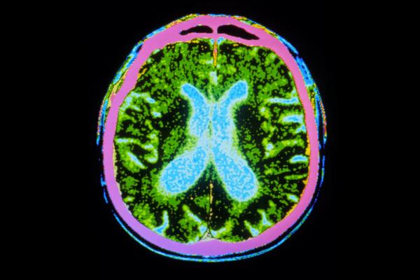سبب مرض باركنسون هو النقص التدريجي في الخلايا المنتجة للدوبامين