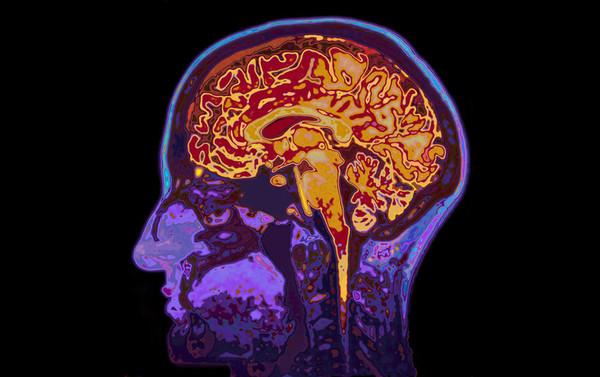 وجد باحثون اختلافات واسعة الانتشار في قشرة المخ كلها تقريبًا. حقوق الصورة: SpeedKingz/Shutterstock.com