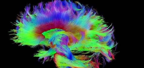 خريطة الدماغ البشري السليم