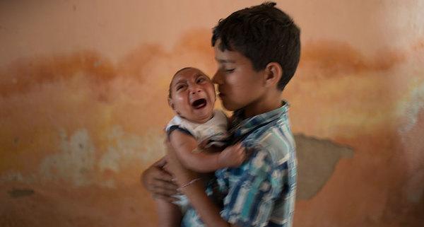 """الجائحة تستمر، فتى برازيلي يحمل أخاه الصغير والمولود عام 2015 مع تشوُّه خلقي يدعى """"ضمور الجمجمة microcephaly"""". يعتقد العلماء أنَّ هذه الحالة متصلة بإصابة الأم بعدوى فيروس زيكا Zika virus الذي ينتقل عن طريق البعوض"""
