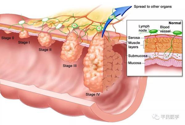 تظهر مراحل السرطان مع درجة غزوه للنسج