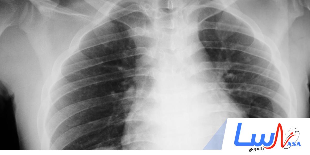 اكتشاف الأشعة السينية
