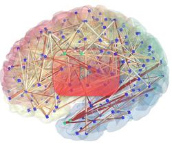 علوم الأعصاب خلال دقيقتين: التصوير العصبي