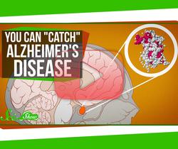 مرض آلزهايمر يمكنه أن يكون معديًا