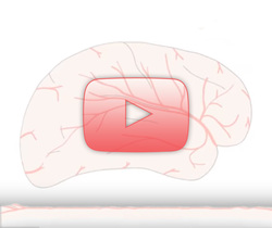 علم الأعصاب خلال دقيقتين: السكتة الدماغية